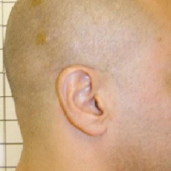 Como se manifiesta la psoriasis sobre el cuero cabelludo
